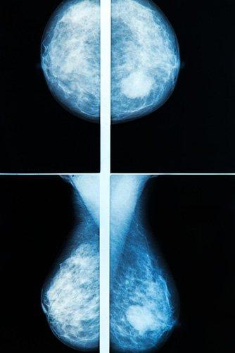 mamografia jelenia góra obrazowanie